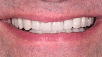 Aviva website - B&A - crowns, veneers and implants