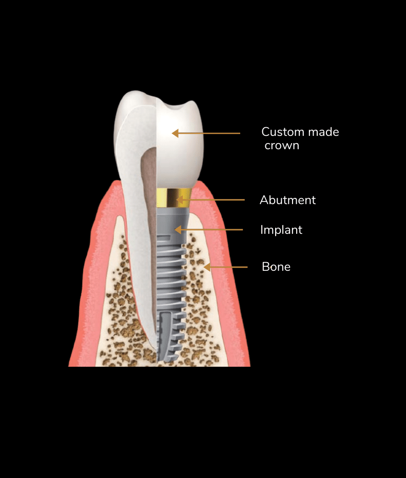 Aviva website - What is a Dental Implant_ (1)