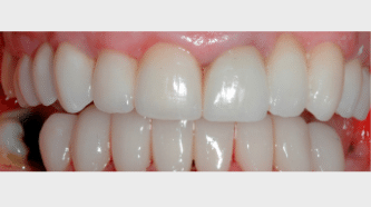 _Aviva website - crowns, veneers & bridges - after - smile gallery