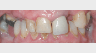 _Aviva website - crowns, veneers & bridges - before - smile gallery