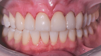 B&A - crowns, veneers and implants - after
