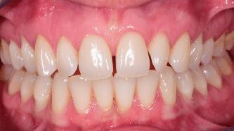 B&A - crowns, veneers and implants - before