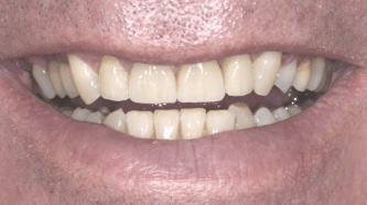 B&A - implants, crowns and veneers - after