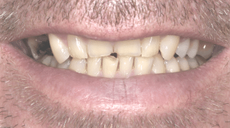 B&A - implants, crowns and veneers - before