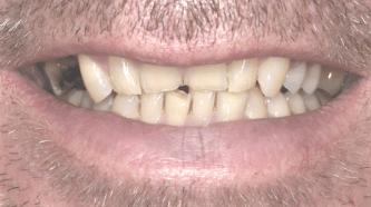 B&A - implants, crowns and veneers - before