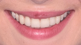 Before & After - 6 Veneers - after