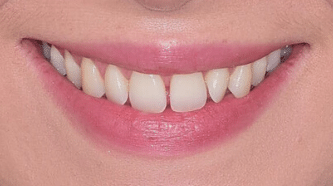 Before & After - 6 Veneers - before