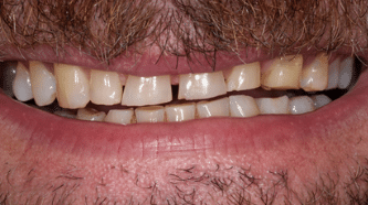 Before - Implants, crowns and veneers