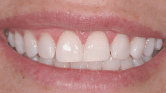 Whitening - after