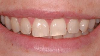 Whitening - before