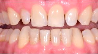Aviva website - B&A - veneers male spacing in a day - before