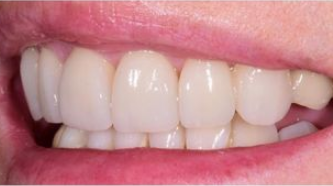 Aviva website - B&A - veneers to treat excessive gums - after