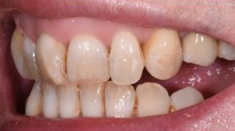 Aviva website - B&A - veneers to treat excessive gums - before